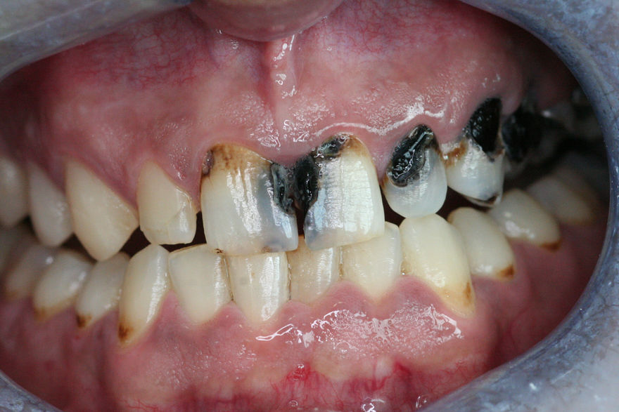 Composite Filling Smile Makeover - Before