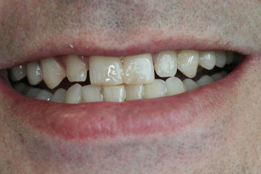 Composite Filling Smile Makeover - After